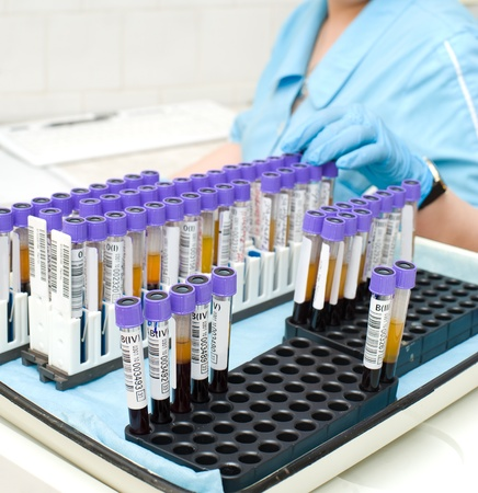 test probe: nurse arranges test tubes with blood being tested Stock Photo