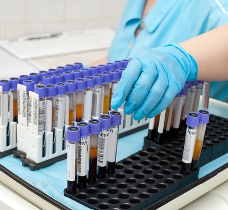 blood test: nurse arranges test tubes with blood on a tray