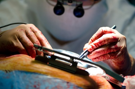 a real cardiac surgery, a closeup shot