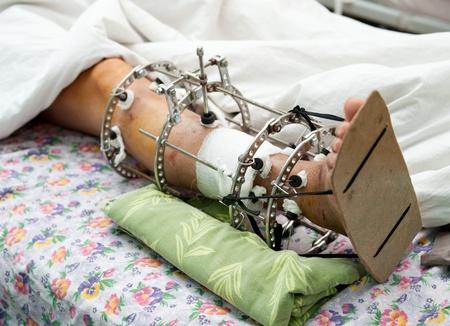 fractura: un hombre con una pierna Ilizarov