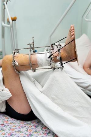 orthopaedic: a male leg with an Ilizarov