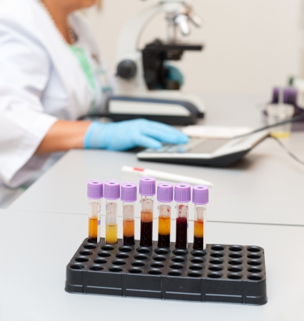 a doctor examines a blood sample under a microscope, test tubes in the foreground
