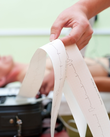 a doctor makes an electrocardiogram for a patient 写真素材