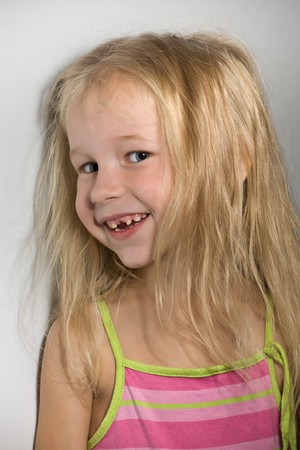 funny smiling little girl without one front tooth photo