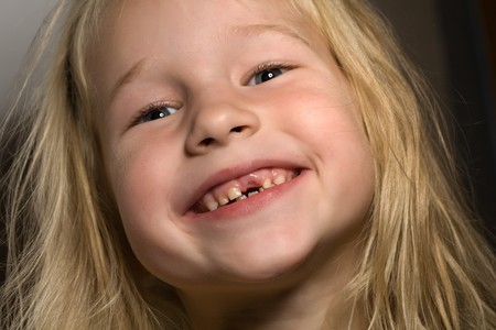 closeup portrait of funny smiling little girl without one front tooth photo