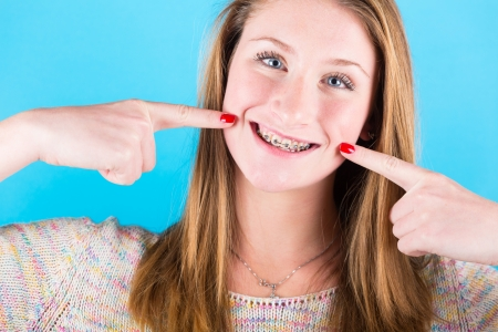 braces: Smiling Beautiful Girl with Braces on Blue Background