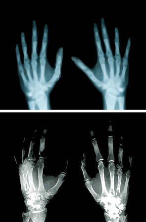 Hands X-Ray Illustration
