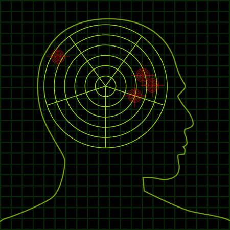 sonic: brain targets Illustration