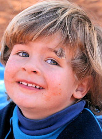 Portrait of a young boy, playing outside in the sand, showing the stitches in his eyebrow, now happy again