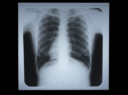 X-ray film of human chest  photo
