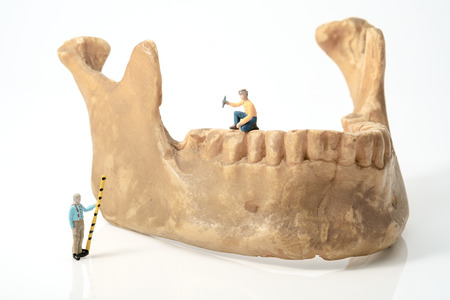 fix jaw: View of miniature toy work on human jaw . Health concept. Stock Photo