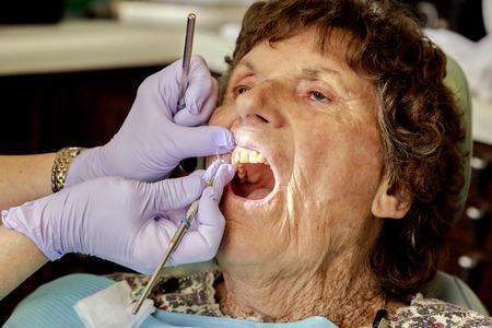 molars: Elderly woman having her teeth cleaned by a dental hygienist