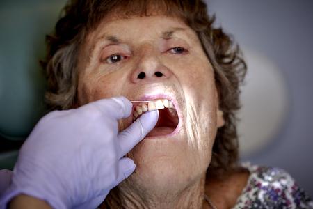 molares: Mujer mayor que hace sus dientes limpiado por un higienista dental Foto de archivo