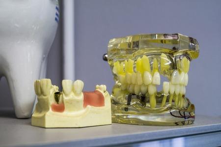 Dental implants and teeth in the skull jowl