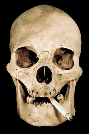 carcinogen: Cr�neo humano con un cigarrillo aislado sobre fondo negro. Foto de archivo
