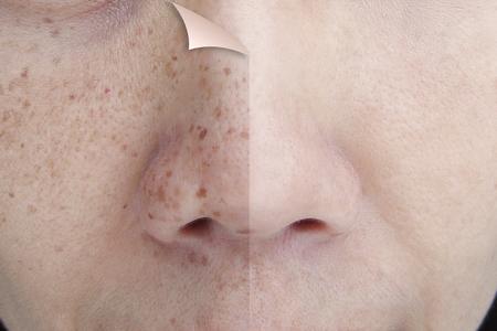 Antes y después de retocar las pecas en el rostro de una mujer asiática joven