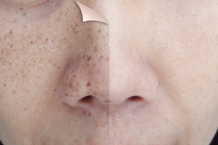 Before and After Retouch Freckles on Young Asian Woman Face Imagens