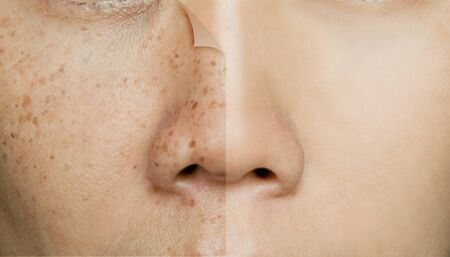 Before and After Retouching Freckles on Asian Woman Face, Skin Problems Banco de Imagens