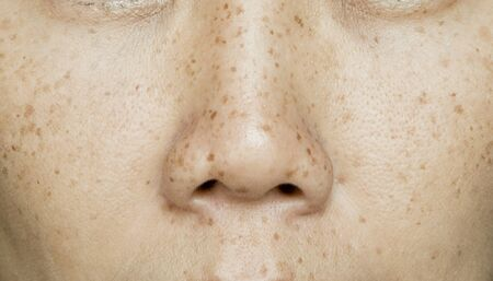 Freckles on Asian Woman Face, Skin Problems 版權商用圖片 - 132206494