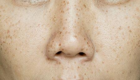 Pecas en la cara de la mujer asiática, problemas de la piel
