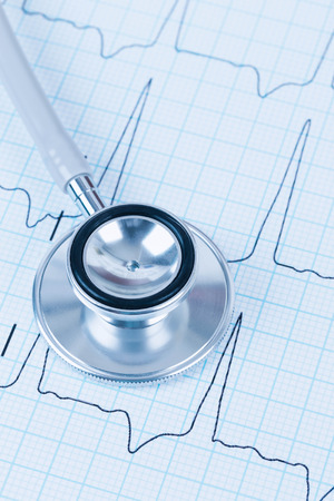 Stethoscope on cardiogram concept for heart care photo