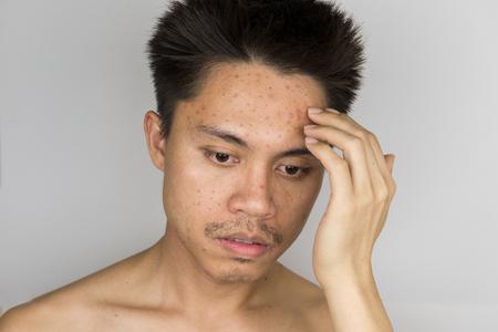 사람의 피부에 여드름은 여드름을 밀어