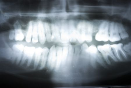 dental x ray on full background Stock Photo - 7069408