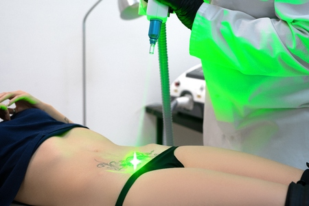 Process of laser tattoo removing from the belly