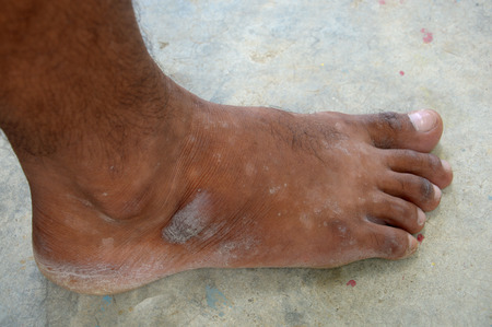 feet with vitiligo, is a medical condition causing depigmentation of patches of skin photo