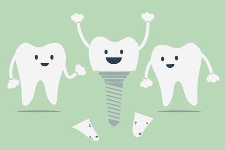 dental cartoon vector, tooth implant