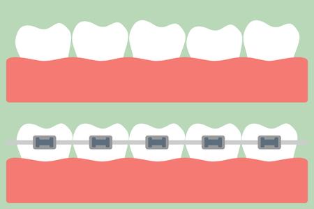 tandheelkundige cartoon vector, tanden orthodontie