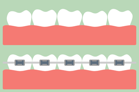muela caricatura: vector de la historieta dental, ortodoncia dientes