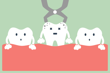 dental cartoon vector, tooth extraction by dental tools  イラスト・ベクター素材