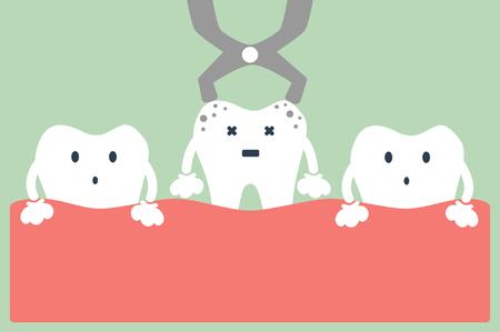 dental cartoon vector, tooth extraction by dental tools Vettoriali