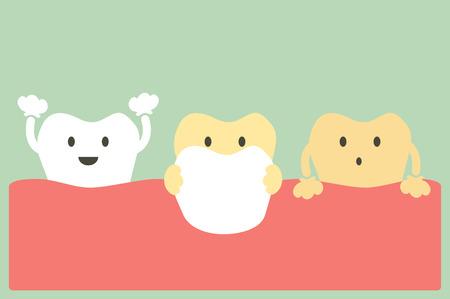 tooth cartoon, veneers teeth
