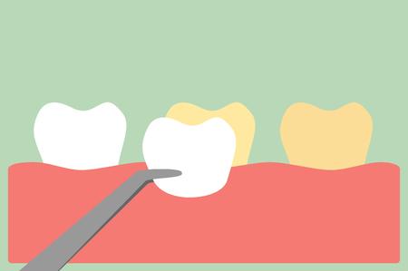 tooth cartoon , veneers teeth