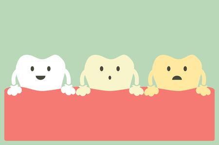 dientes sucios: de dibujos animados dental, blanqueamiento de dientes