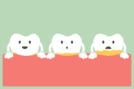 dental cartoon, tooth periodontal disease with plaque or tartar