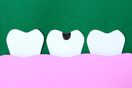 dientes con caries: papel de corte dental, diente cariado Foto de archivo