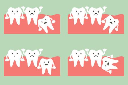 Zahn Cartoon-Vektor, der Art der Weisheitszahn