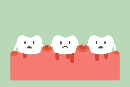 dental cartoon vector, unhealthy teeth because periodontitis and bleeding Stock Illustratie