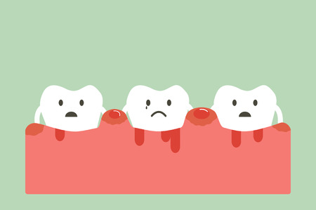 dental cartoon vector, unhealthy teeth because periodontitis and bleeding Illustration