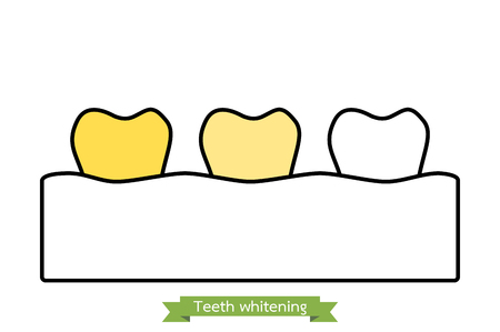 Teeth whitening - dental cartoon vector outline style, cute character for design Illustration