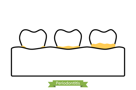 Dental plaque or tartar - tooth cartoon vector outline style, cute character for design Illustration
