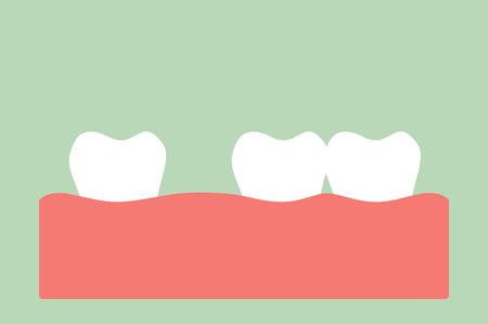 tooth cartoon vector, dental problem - spacing teeth ( diastema ) Illustration