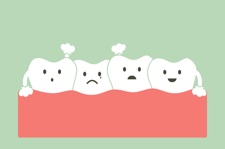 overcrowding: tooth cartoon vector, dental problem - crowding teeth ( malocclusion )