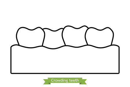 overcrowding: dental problem - crowding teeth ( malocclusion ) - tooth cartoon vector outline style, cute character for design