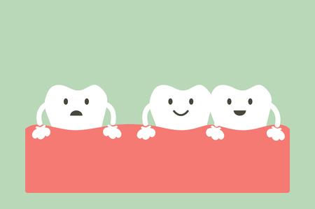 diente de dibujos animados vector, dental problema - espaciamiento de los dientes (diastema) Ilustración de vector
