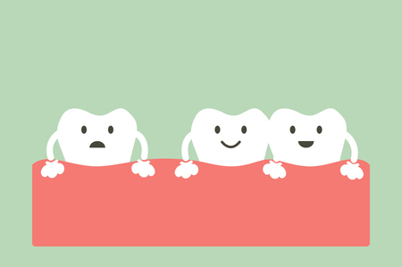 spacing: tooth cartoon vector, dental problem - spacing teeth ( diastema ) Illustration
