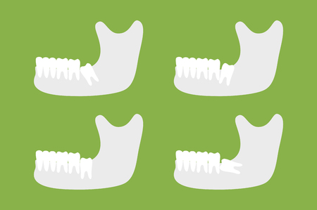 dental cartoon vector, set of type of wisdom tooth with mandible or lower jaw isolated on green background. flat style